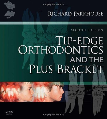 Tip-Edge Orthodontics and the Plus Bracket, 2e - Richard Parkhouse BDS(Hons Lond) FDS DOrth RCS(Eng)