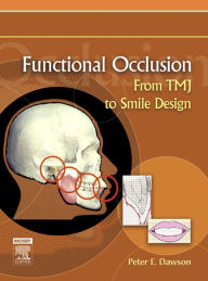 Functional Occlusion - Elsevieron VitalSource: From TMJ to Smile Design - Peter E. Dawson