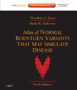 Atlas of Normal Roentgen Variants That May Simulate Disease: Expert Consult - Enhanced Online Features and Print, 9e