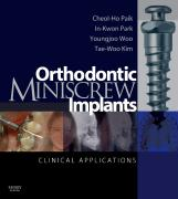 Orthodontic Miniscrew Implants