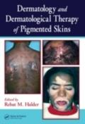 Dermatology and Dermatological Therapy of Pigmented Skins