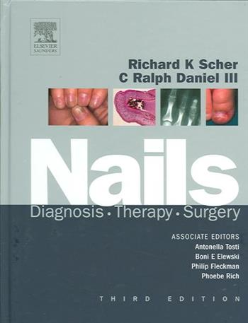 Nails: Diagnosis, Therapy, Surgery
